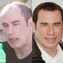 John Travolta's Battle with Baldness